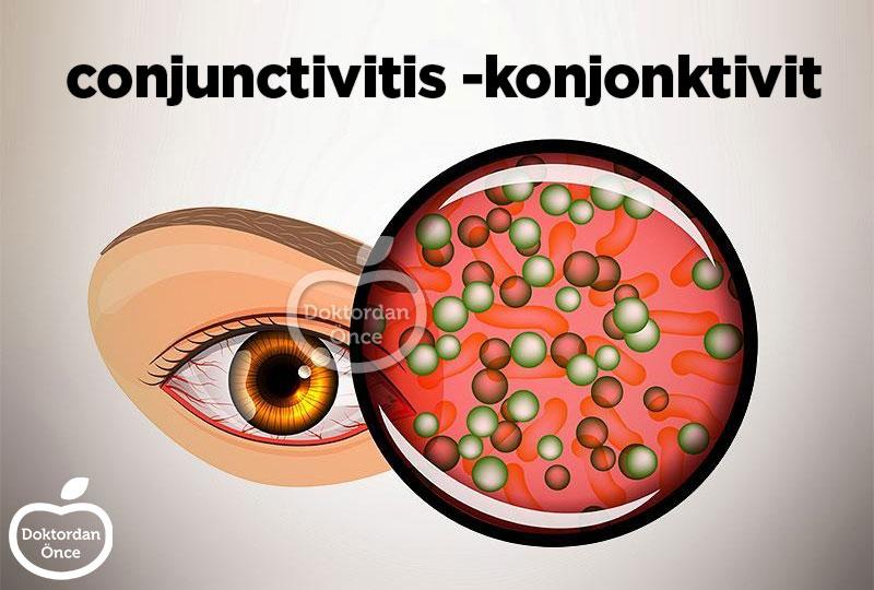 conjunctivitis neden olur?