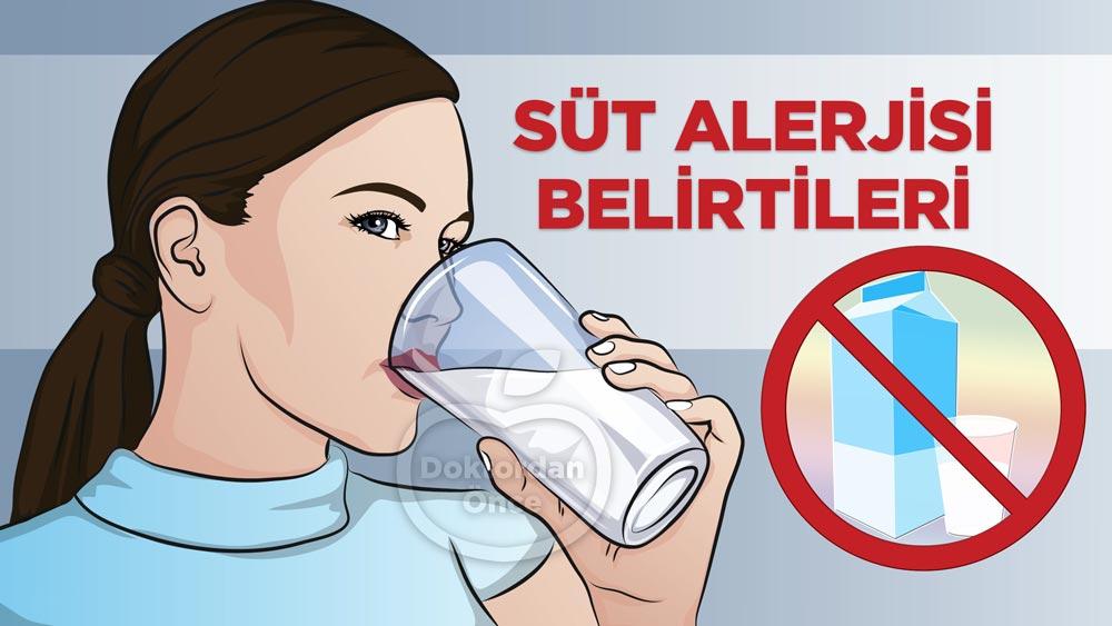 Süt alerjisi nedir? Belirtileri nelerdir?